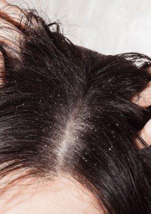 5 علت شوره سر و روش های درمان آن